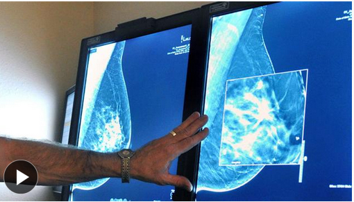 TV-Show-Mammograms