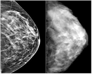 Are the Harms of Mammography Underestimated?