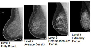 Minnesota and Rhode Island enact breast density laws