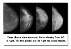 Breast-Density